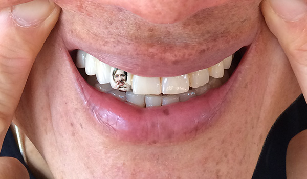 meta_shanemacgowan_teeth